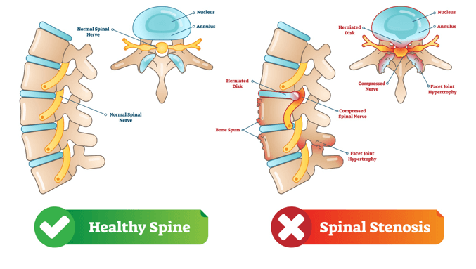 Neck Pain Treatment: Know About Cervical Spinal Canal