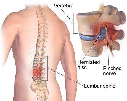 broken vertebrae lower back treatment
