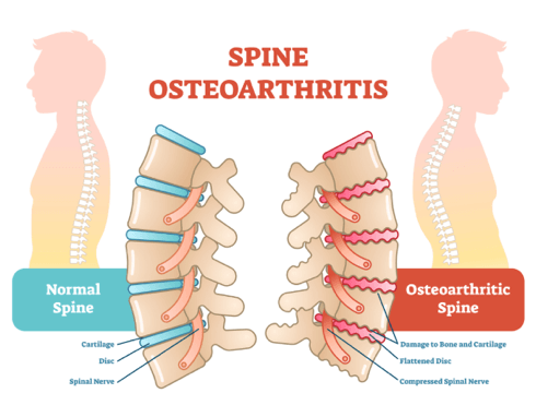 Spinal Arthritis Causes, Symptoms \u0026 Treatment