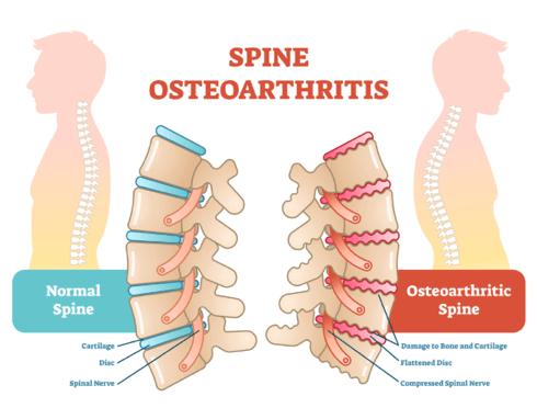 Spinal Arthritis Causes, Symptoms \u0026 Treatment